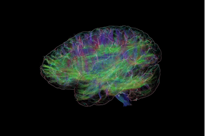 Picture of Get Inside Your Mind: Tour the Human Brain 6 pm