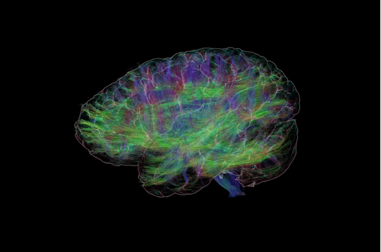 Picture of Get Inside Your Mind: Tour the Human Brain 8 pm